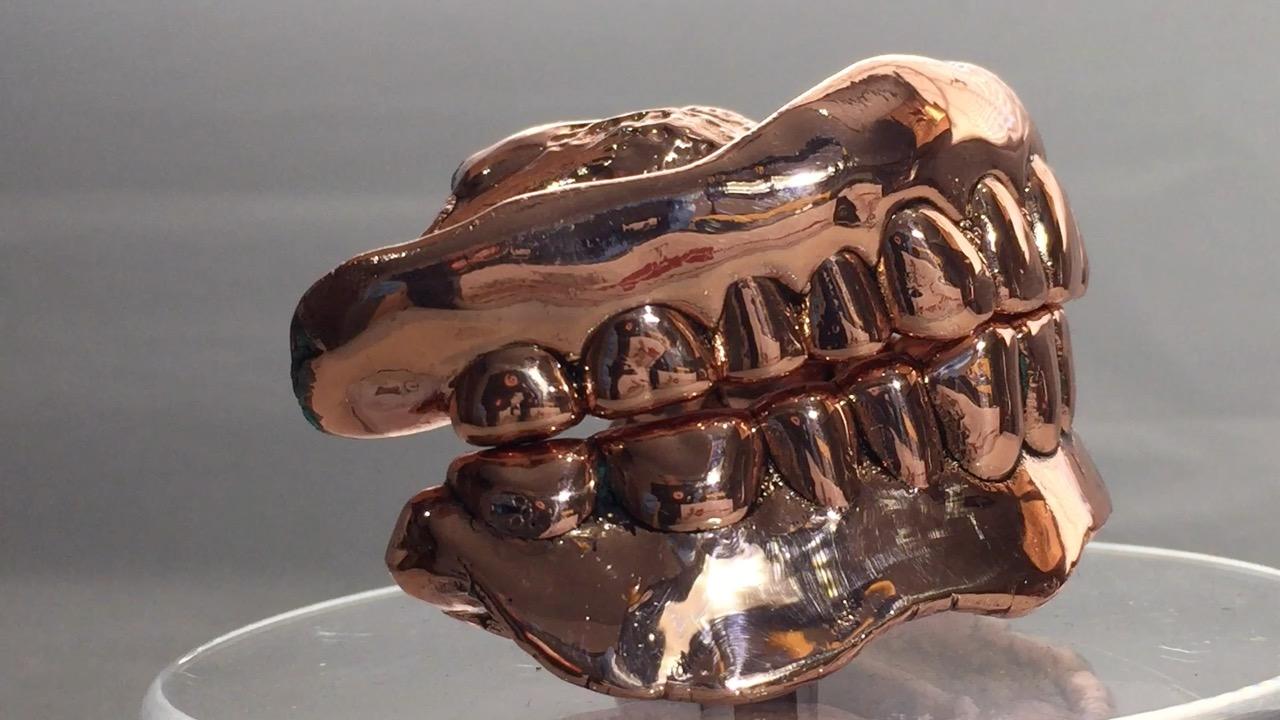 Copper Dentures